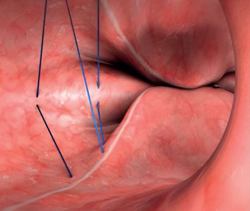 Sutures - Sleeve gastroplastie endoscopique