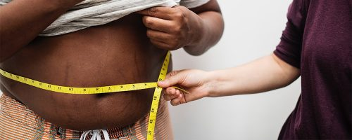 Losing weight with the gastric balloon